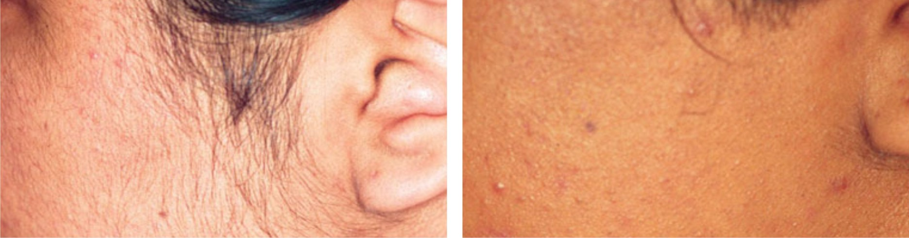 Laser Hair Removal Image One