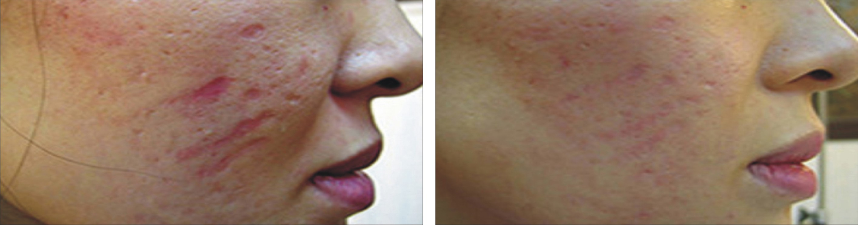 Acne Image Two