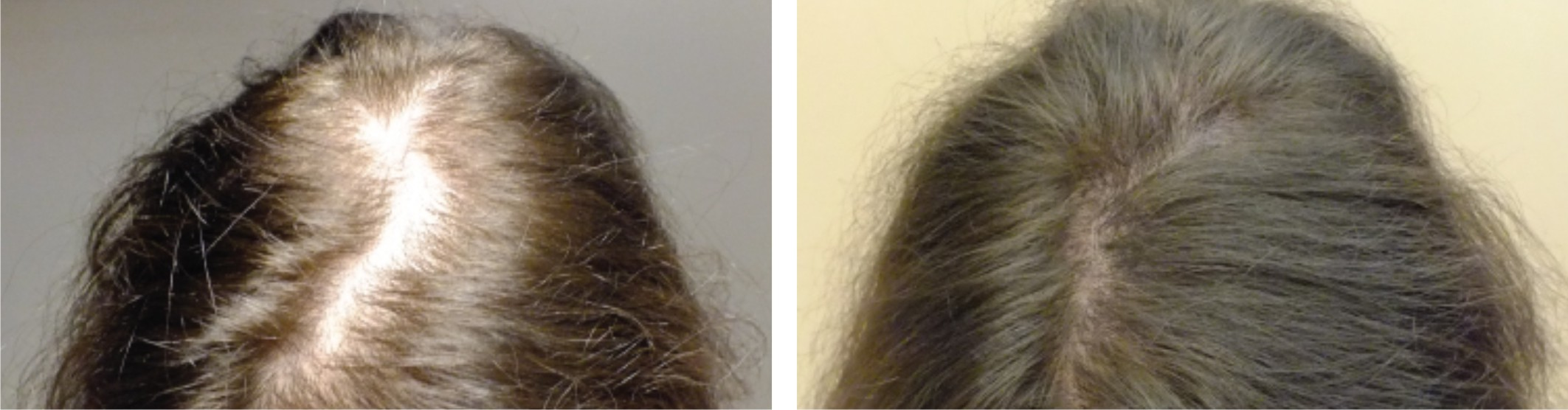 Hair Fall Image Two