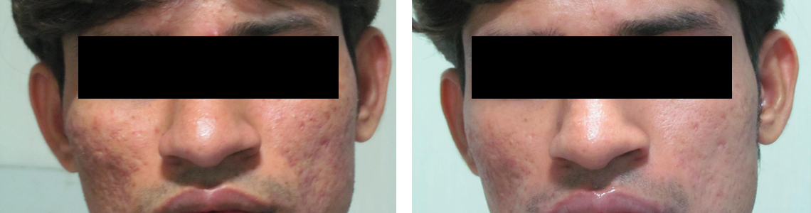 Chemical Peel Image Four