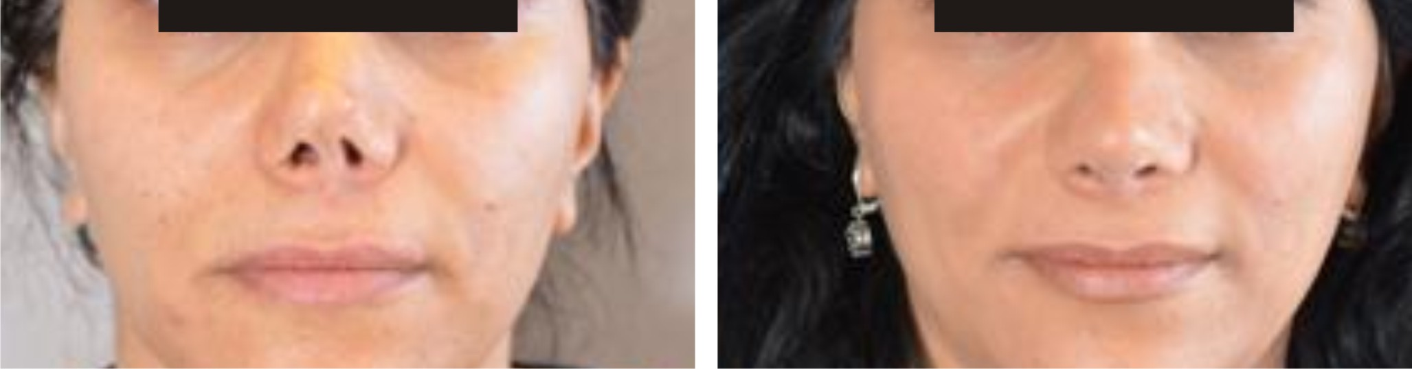Nose Reshaping Image Two