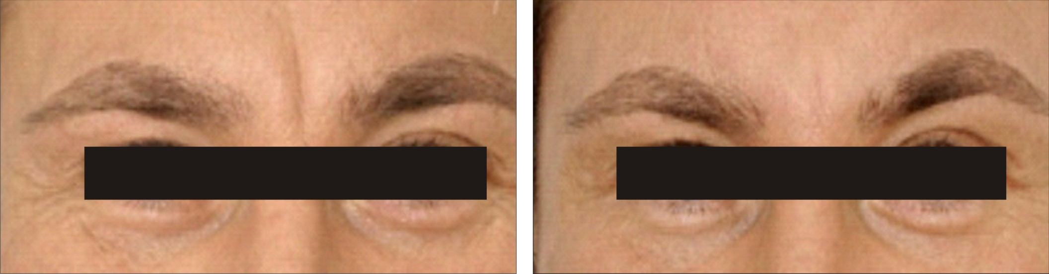 Anti Ageing Treatment Image One
