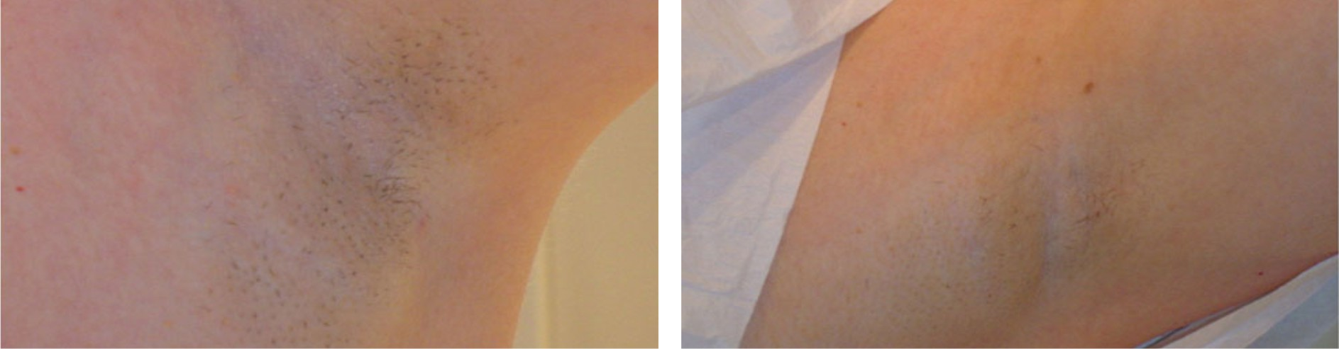 Laser Hair Removal Image Three