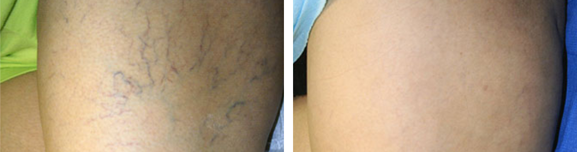 Laser Vein Removal Image One