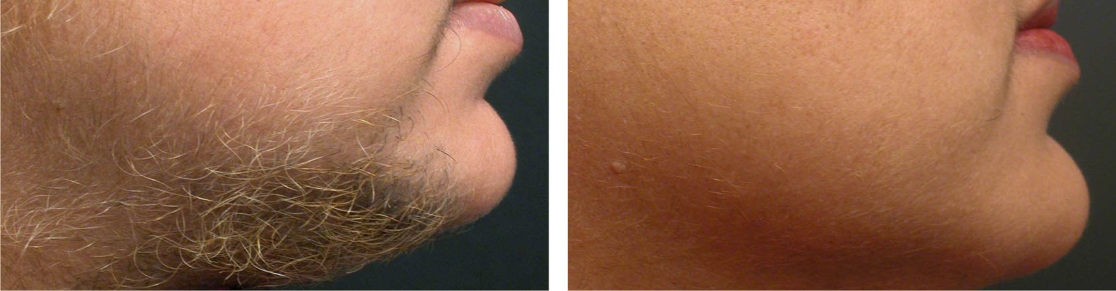 Painless Laser Hair Removal Image One
