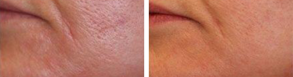 Laser Pore Tightening Image Two