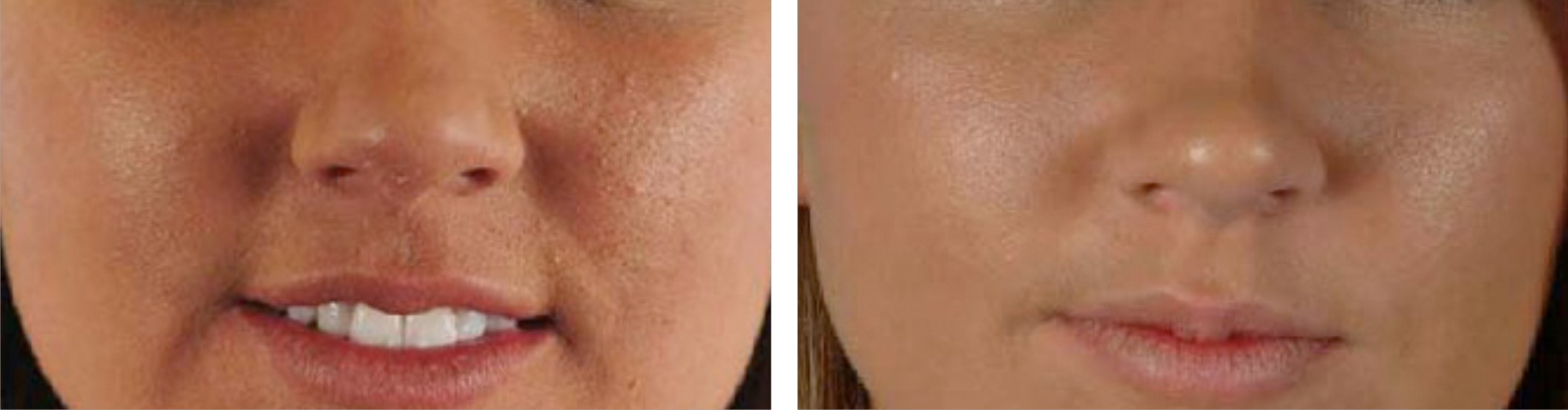 Microdermabrasion Image One