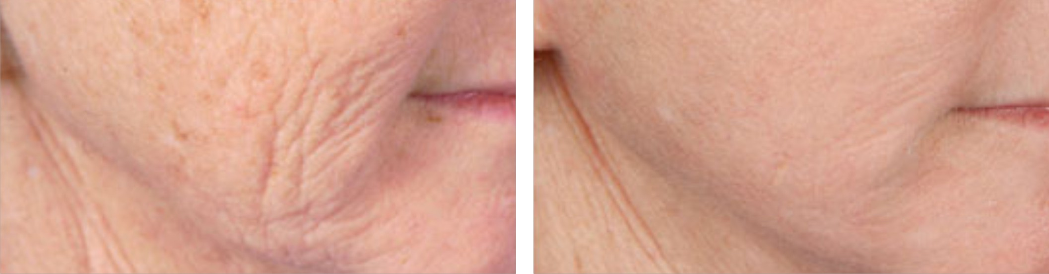 Radio Frequency Skin Tightening (RF) Image One