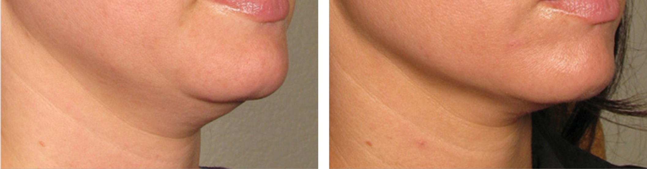 Radio Frequency Skin Tightening (RF) Image Three