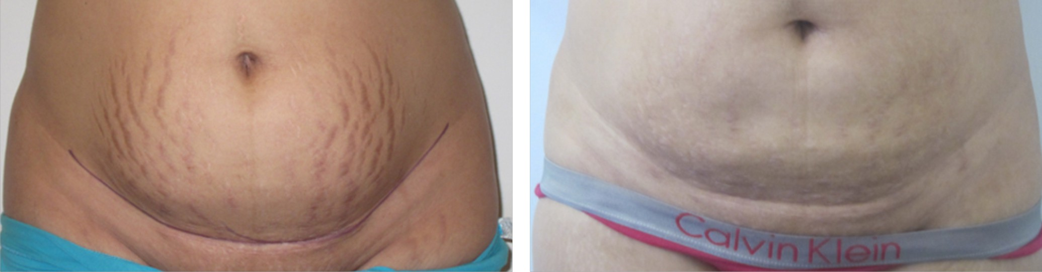 Stretch Marks Image Two