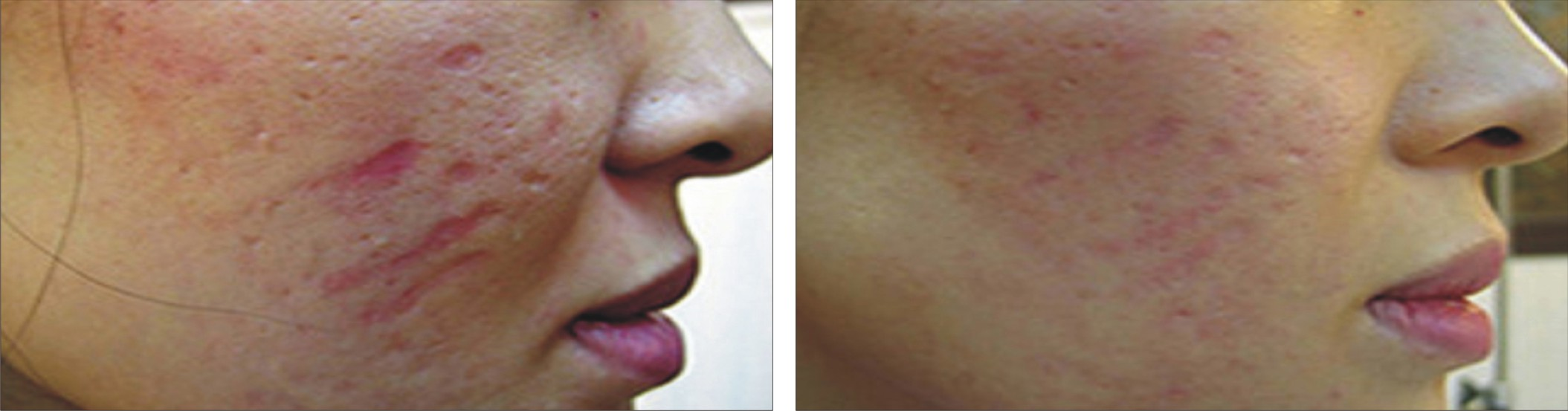 Collagen Induction Therapy Image Two