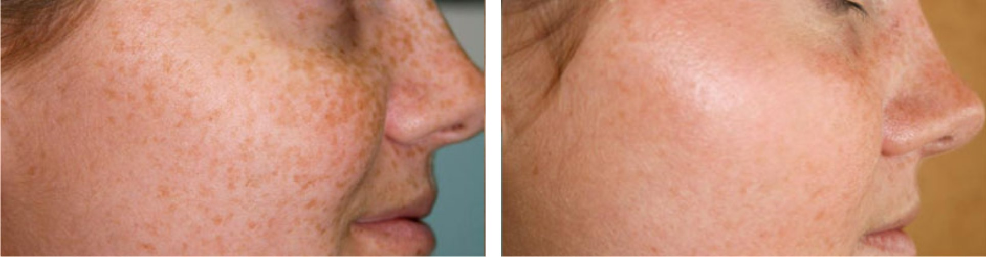 Laser Freckle Removal Image Three