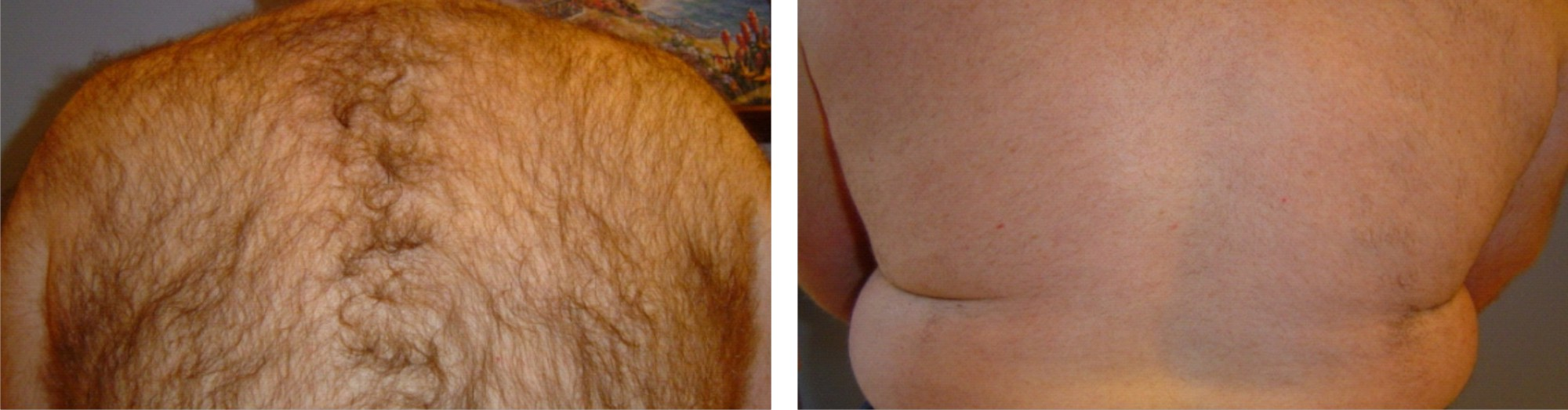 IPL Hair Removal Image Two