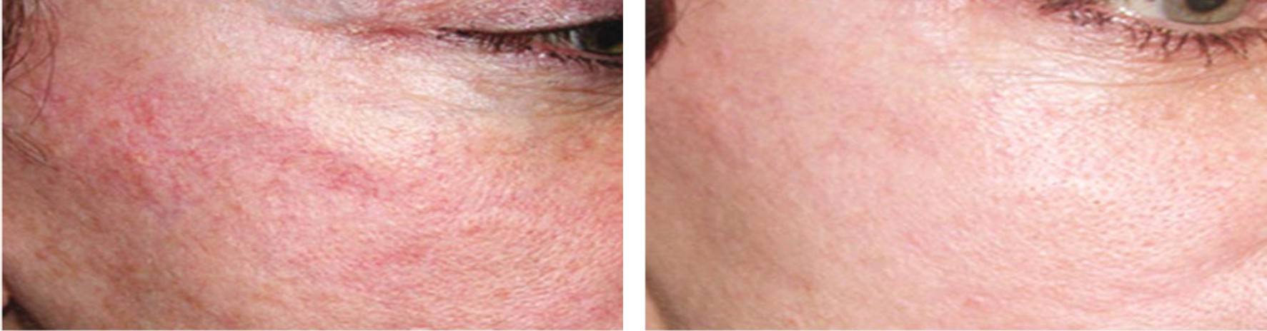 Laser Skin Rejuvenation Image Three