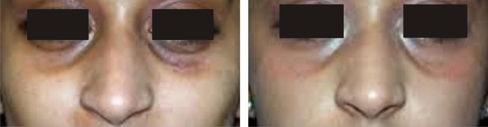 Under Eye Dark Circles Image Two