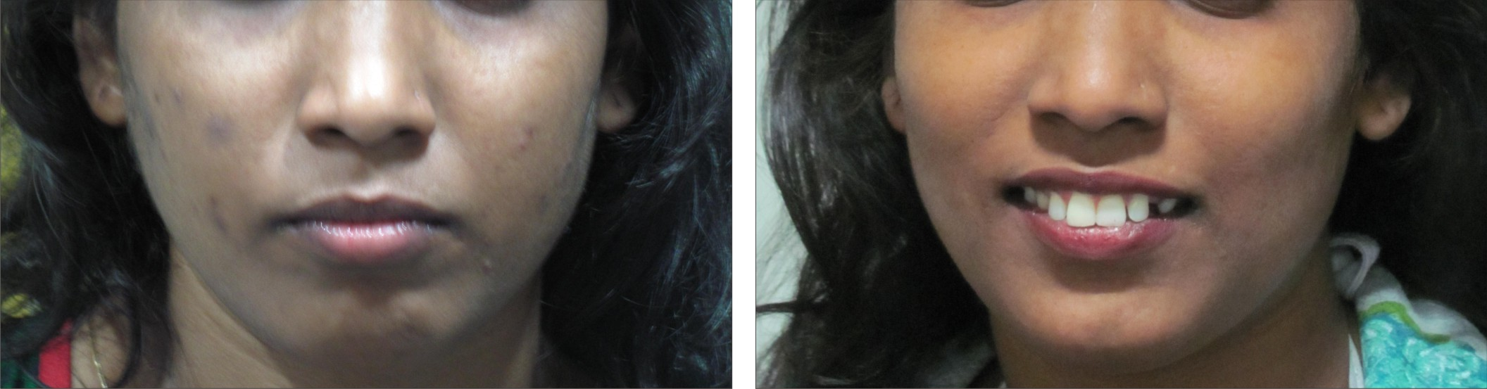 Chemical Peel Image Two