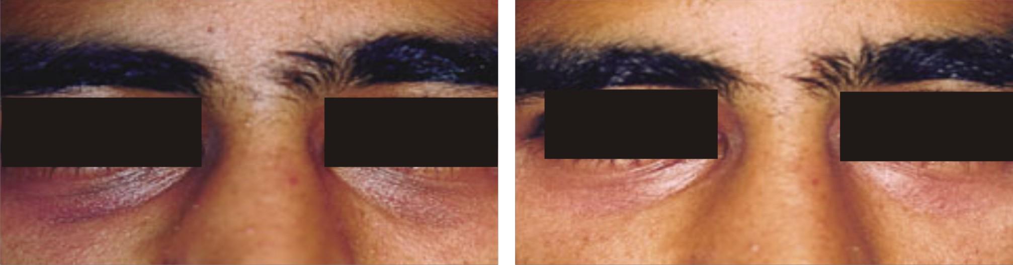 Under Eye Dark Circles | Under Eye Dark Circles Removal ...