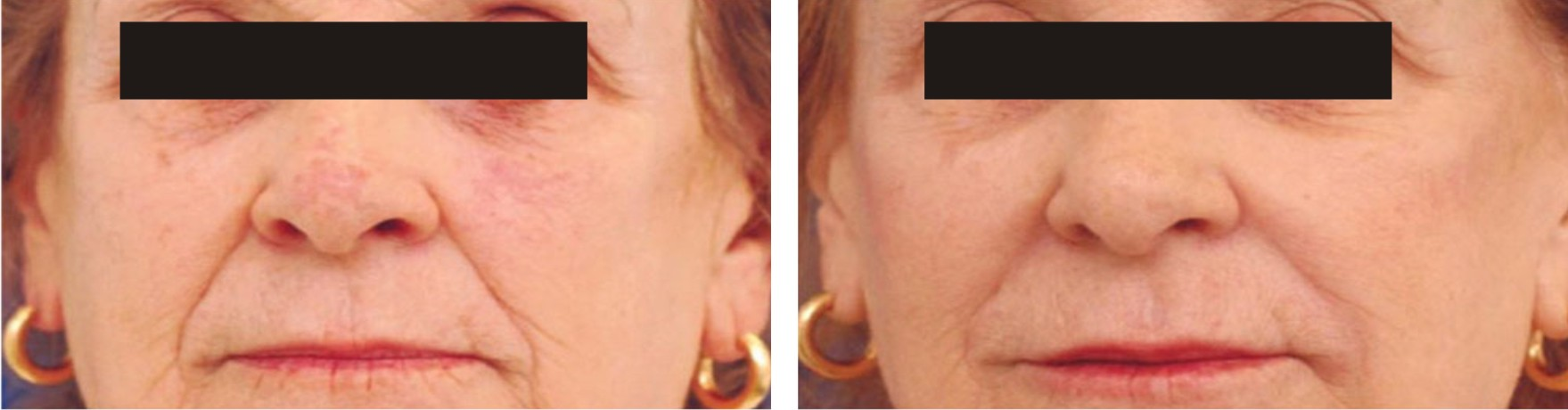 Laser Skin Tightening Image Two