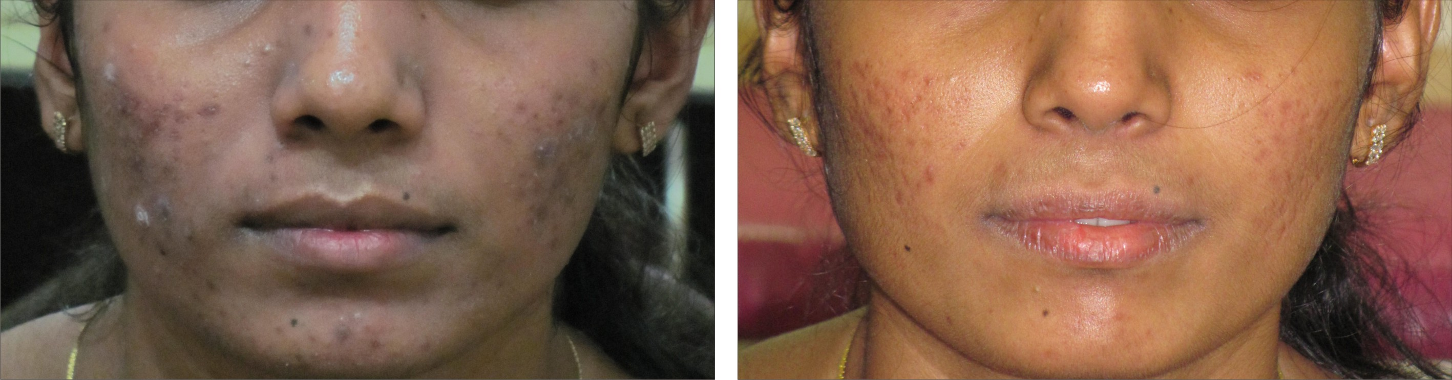 Chemical Peel Image One