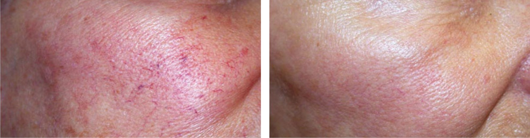 Laser Skin Rejuvenation Image One