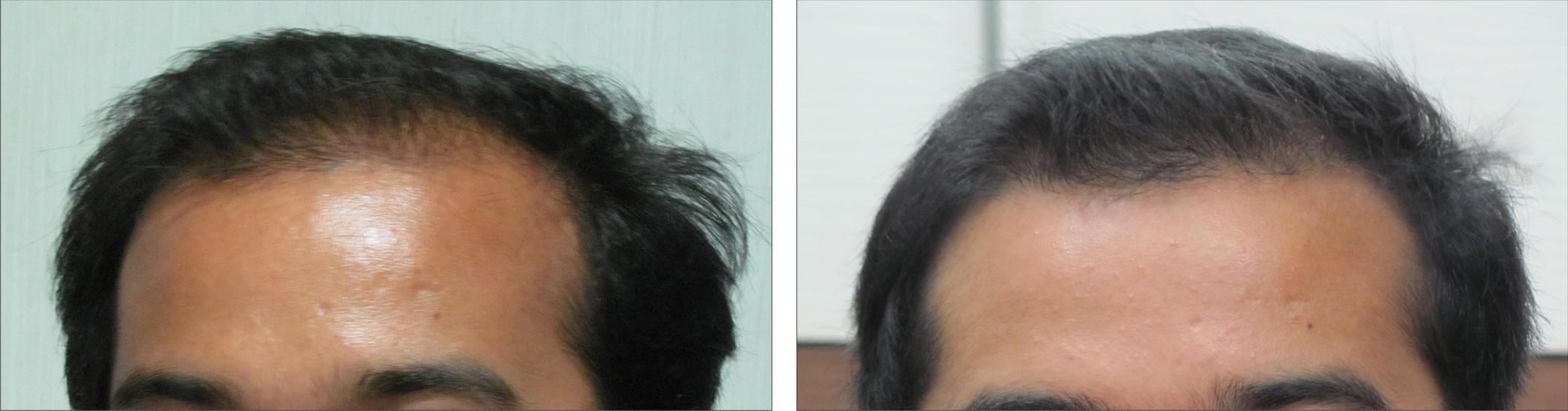 Derma Roller Image Three