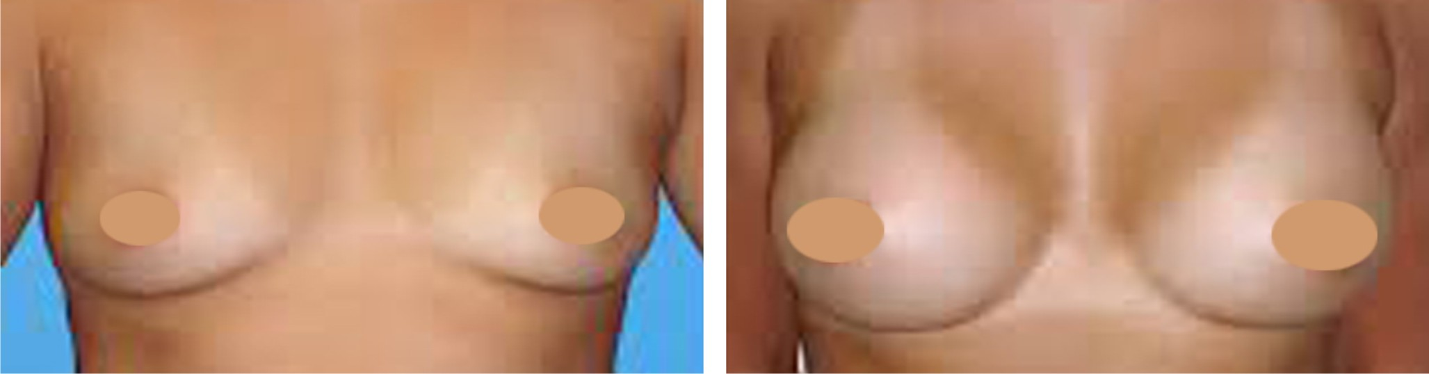 Breast Augmentation Image Two