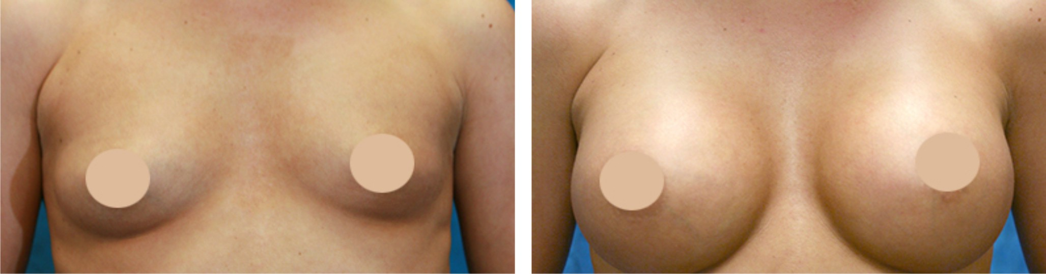 Breast Augmentation Image One