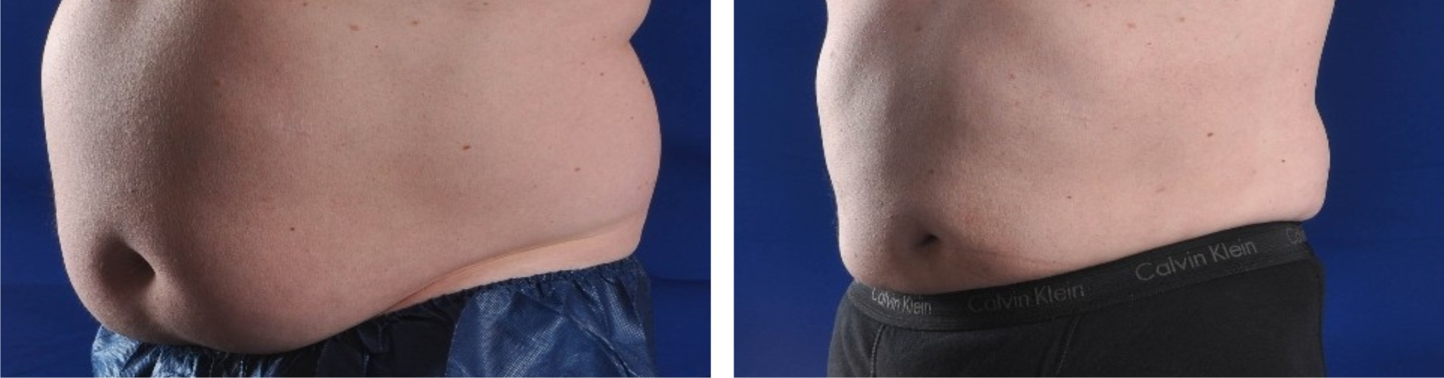 Liposuction Image One