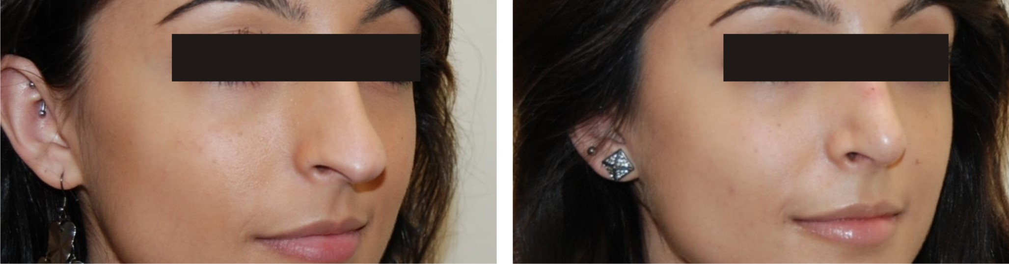 Nose Reshaping Image One