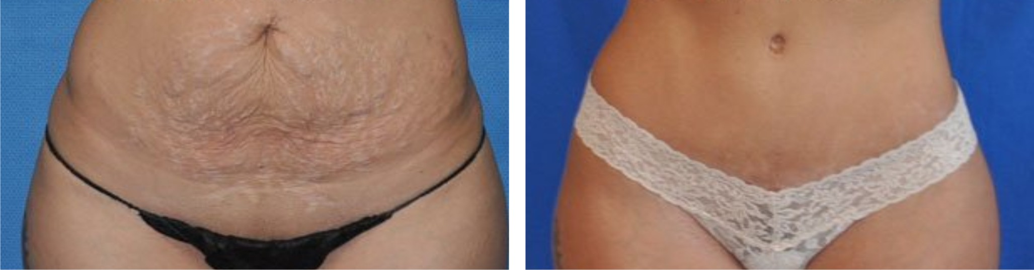 Tummy Tuck Image Two