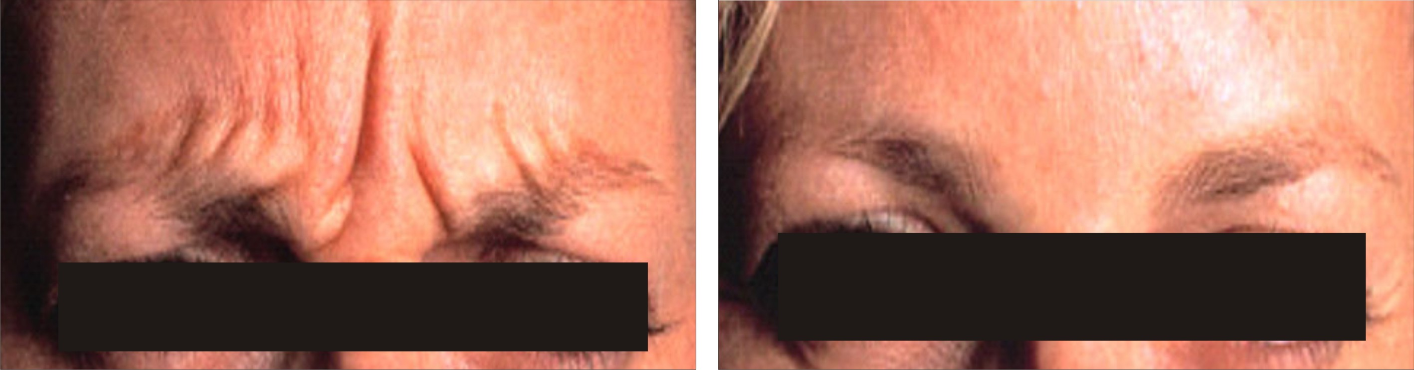 Botulinum Toxin A Image Two
