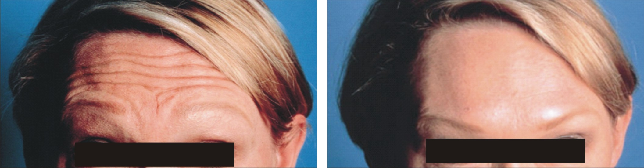 Anti Ageing Treatment Image Two