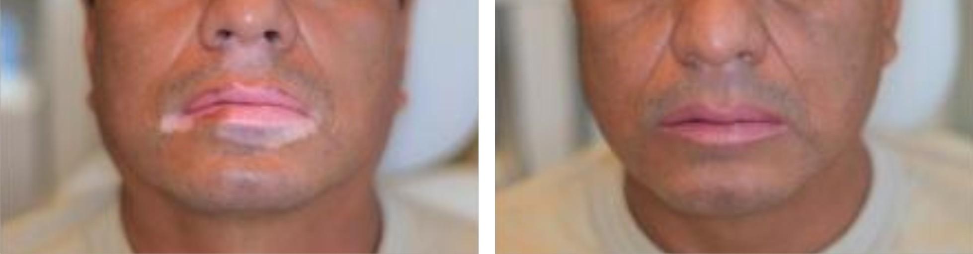Vitiligo Image One