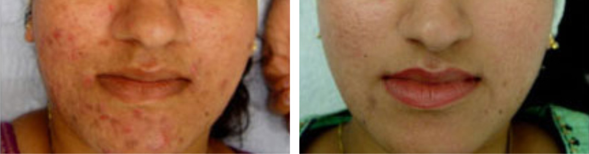 Microdermabrasion Image Two