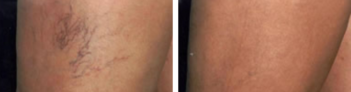 Laser Vein Removal Image Two