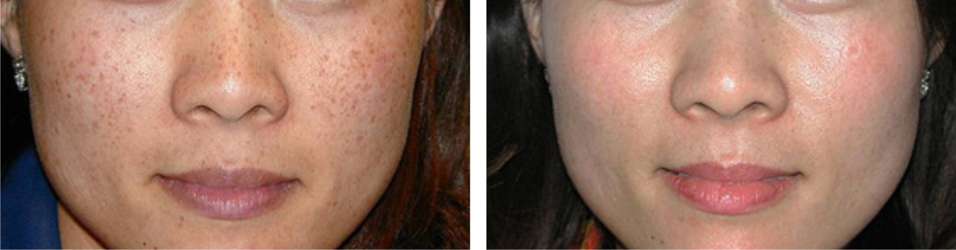 Laser Freckle Removal Image Two