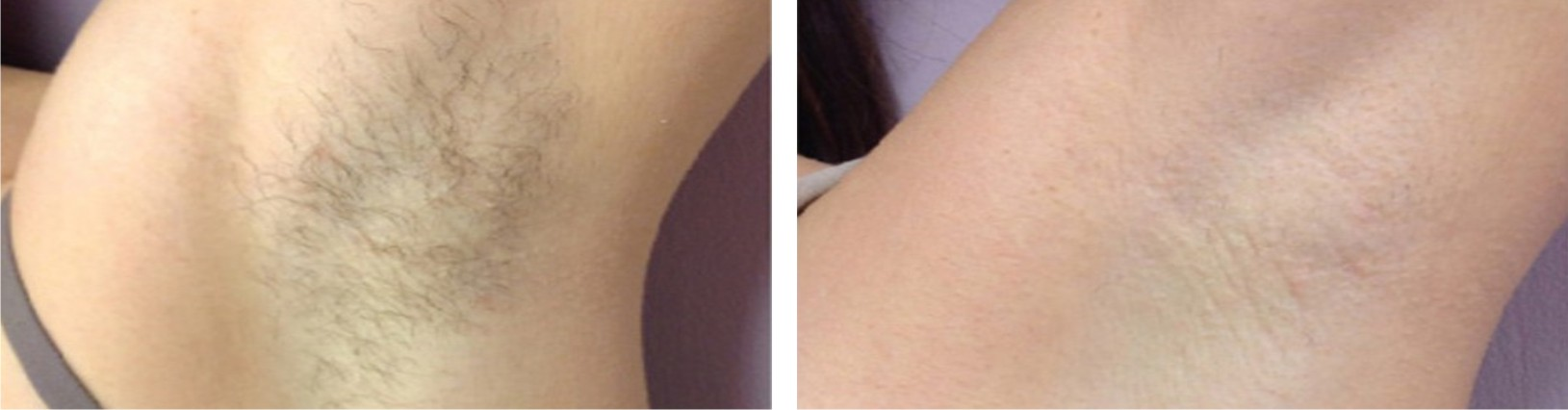 Painless Laser Hair Removal Image Three