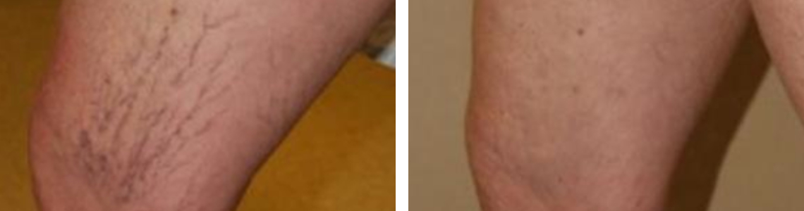 Laser Vein Removal Image Four