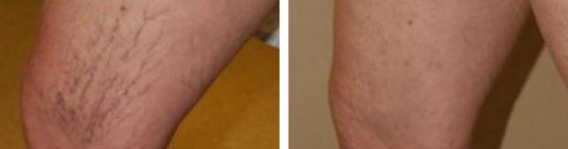 Laser Vein Removal Image Four