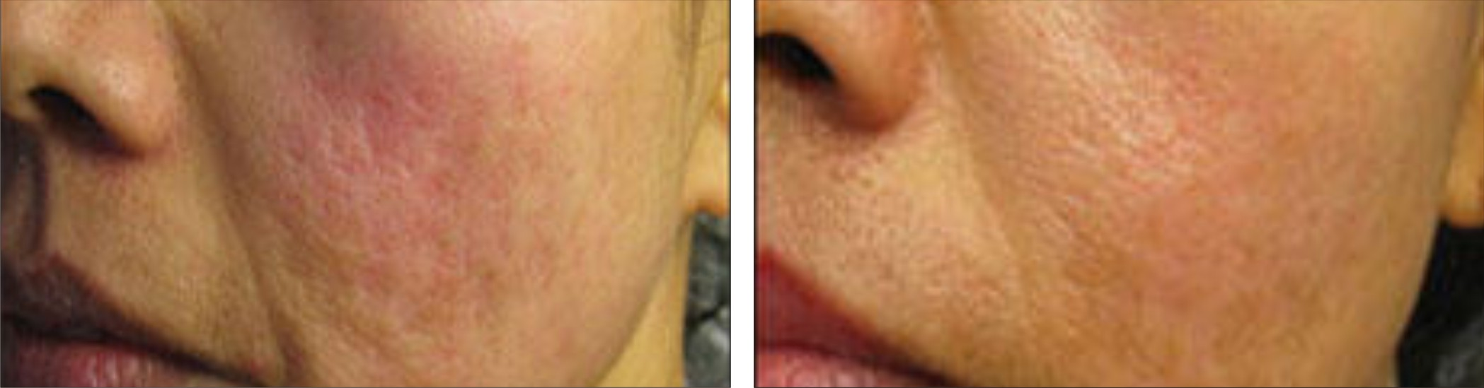 Dermapen Image Two