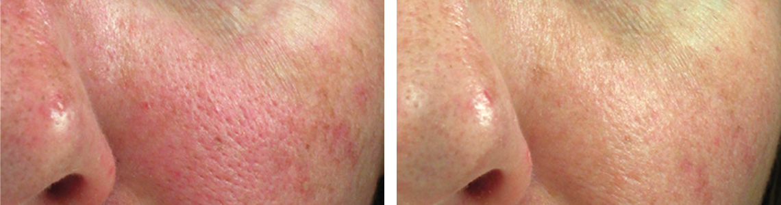 Laser Pore Tightening Image One