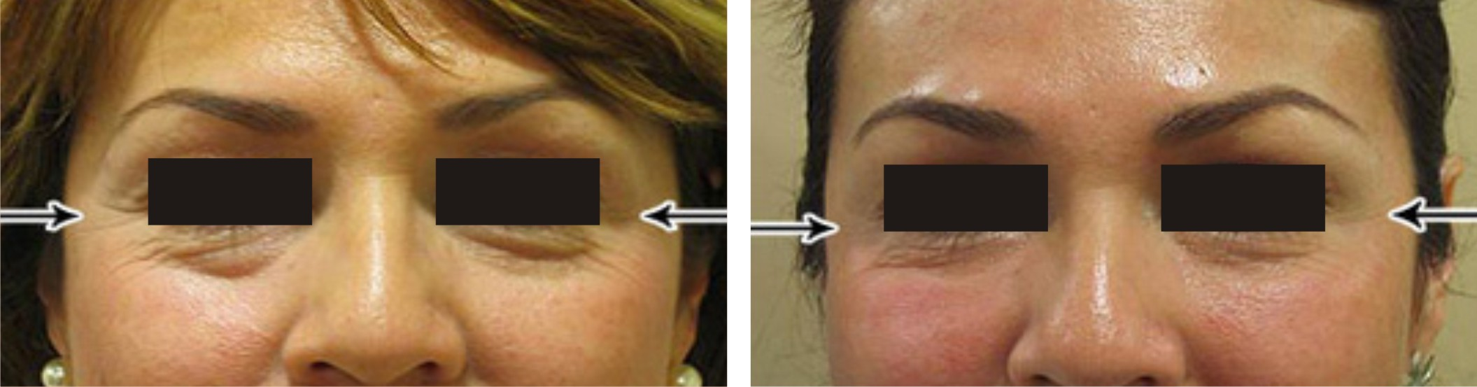 Mesotherapy Image Two