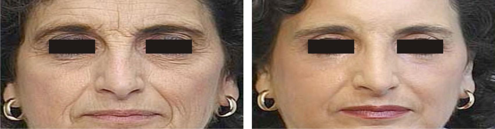 Laser Tonning Image One