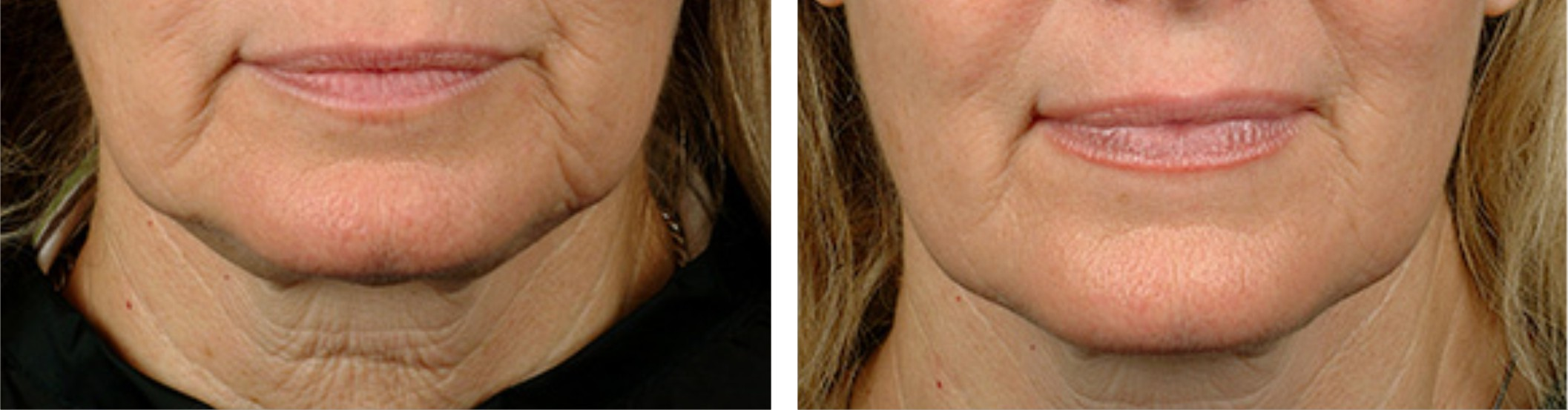 Radio Frequency Skin Tightening (RF) Image Two