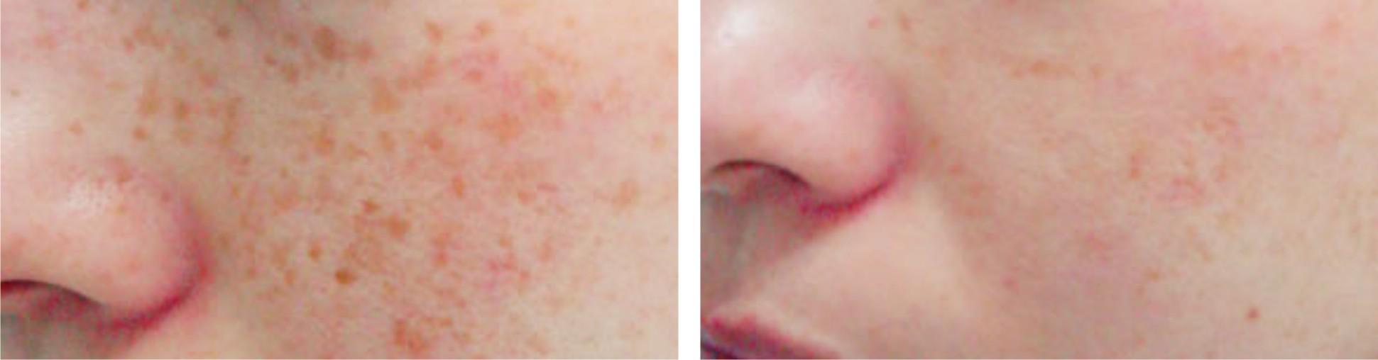 Laser Freckle Removal Image Four