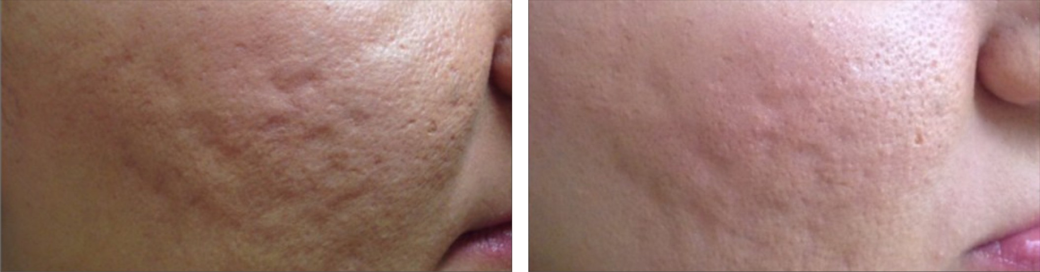 Collagen Induction Therapy Image One