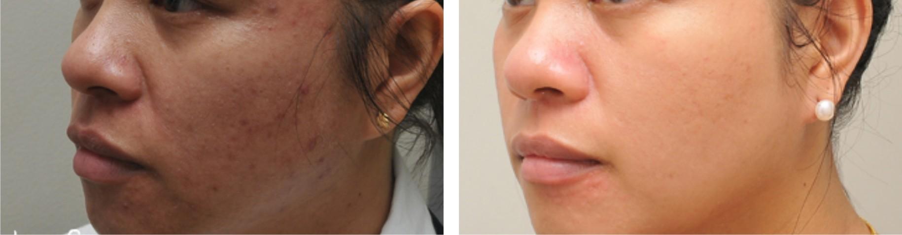 Laser Skin Whitening Image One