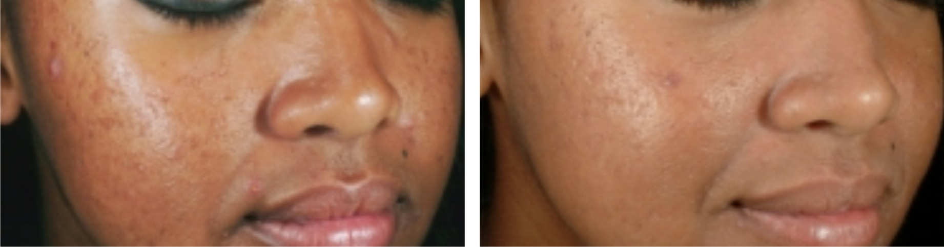 Laser Skin Whitening Image Three