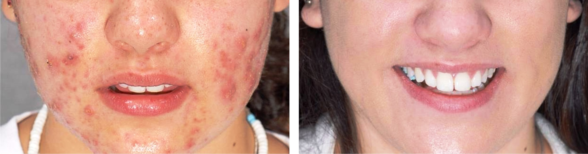 Laser Acne Scar Removal Image One