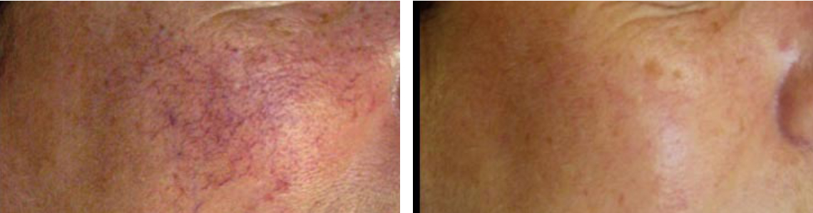 Laser Broken Capillaries Removal Image One
